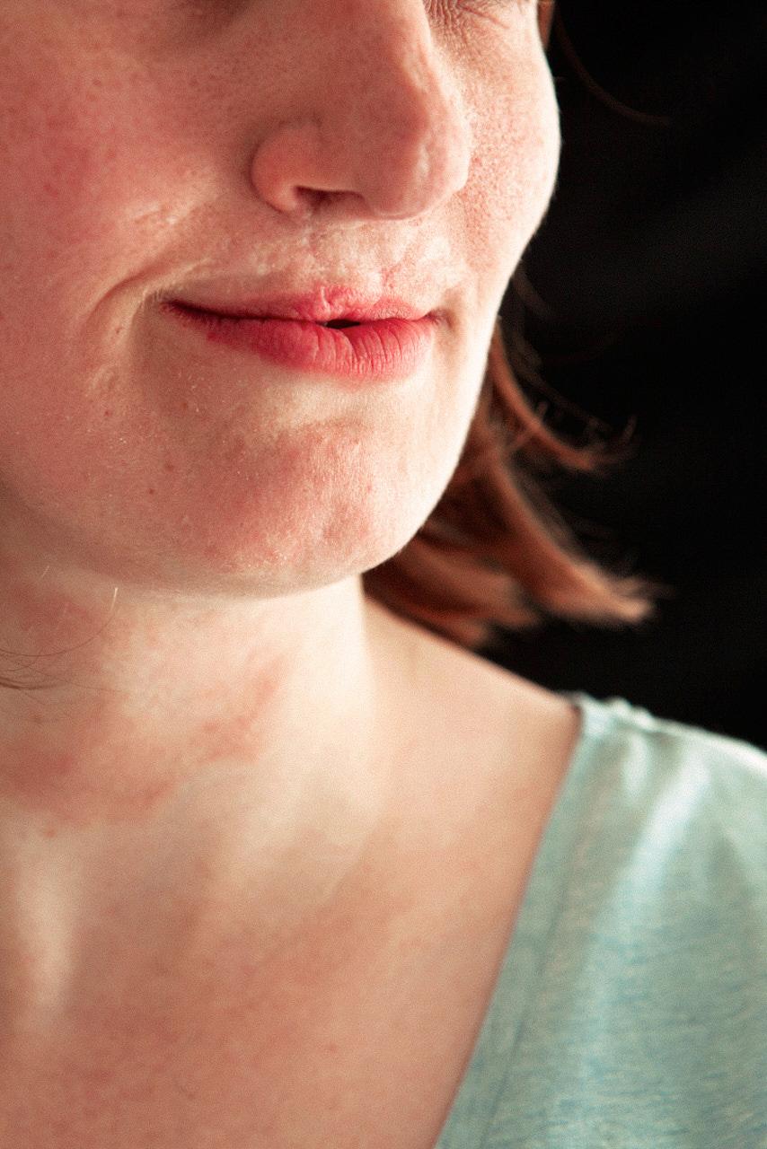 16_HayleyAustin_scars